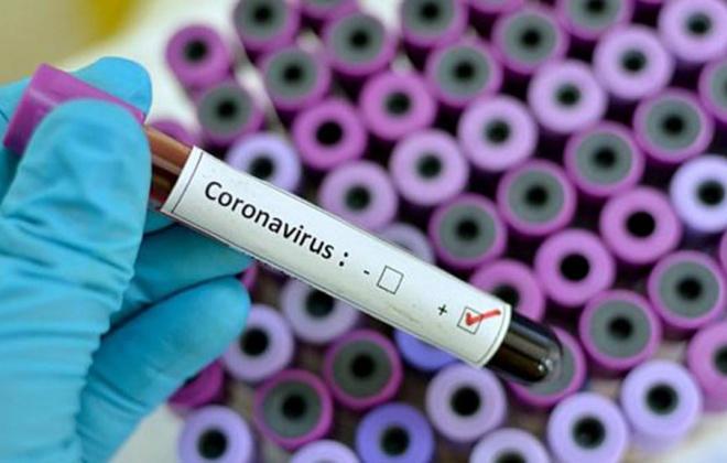 Segunda vaga de Covid-19 pode ser evitada se contactos forem reduzidos e assintomáticos controlados